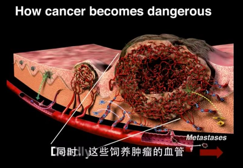 cancer-start2